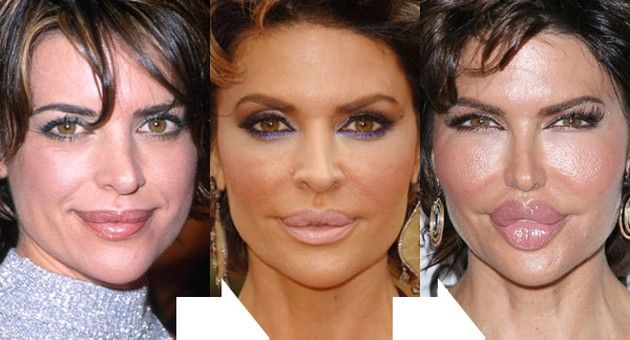 Lisa Rinna Before And After Lip Implants Oh My God