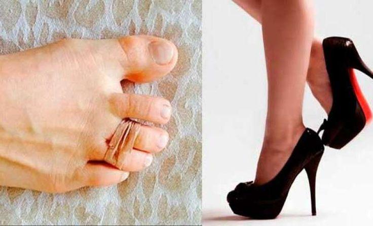 Adios dolor en los pies con tacos altos, este truco tan sencillo es la solución
