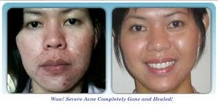 Watch your acne problem diminish! Jeunesse. We are redefining youth with our Jeunesse Luminesce cellular rejuvenation Serum! Ask me how you can try a free sample!  marylouminer.com