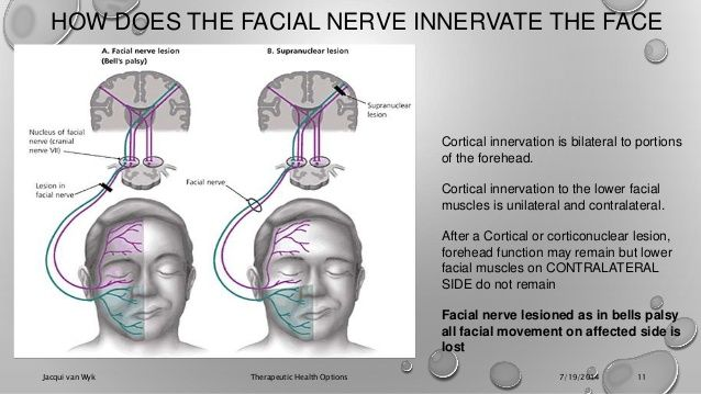 facial nerve palsy classification