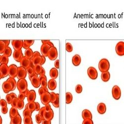 There are mainly three different causes of anemia- blood loss, decreased level of RBC production and destruction of RBC.
