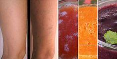 3 frullati che favoriscono la circolazione delle gambe | Rimedio Naturale