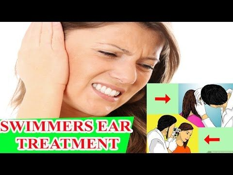 swimmers ear treatment Get Rid of Swimmer's Ear