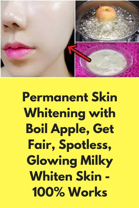 Permanent Skin Whitening with Boil Apple, Get Fair, Spotless, Glowing Milky Whiten Skin - 100% Works Today I will share about magical skin whitener face mask. With this mask, you will get spotless, clean, clear, glowing and bright skin in just 7 days. This remedy is very effective for permanent skin whitening with any black spots. For best results use it 2-3 times in a week. Ingredients- 1 apple 1 tablespoon yogurt 1 …