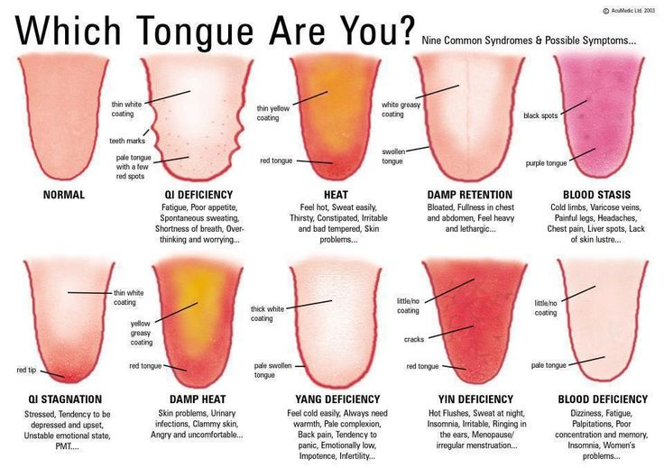 Ever have the Dr. check your tongue? Ever wonder why? Now you know. Apparently, the tongue is the first indication of something wrong in the body.