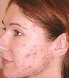 rare tips on how to eliminate acne and achieve perfect clear skin in  as little as 7 days!