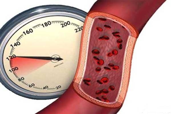 Néhány érdekesség a magas vérnyomásról, amiről sok beteg még csak nem is hallott!