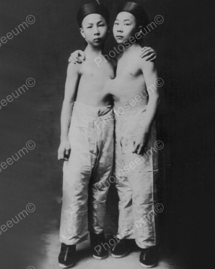 Korean Conjoined Siamese Twins 1900s 8x10 Reprint Of Old Photo