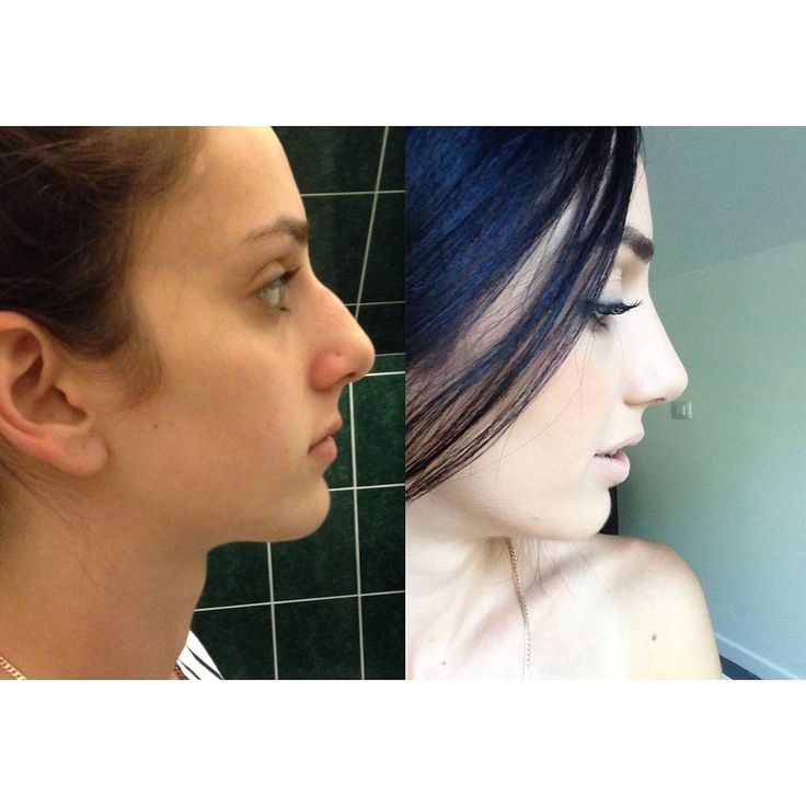 "270 Likes, 37 Comments - CosMediTour (@cosmeditour) on Instagram: ""BEFORE AND AFTER NOSE CORRECTION SURGERY!  ""If you're considering Rhinoplasty due to having an…"""