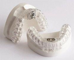 UT Sleep Center | Oral Appliances