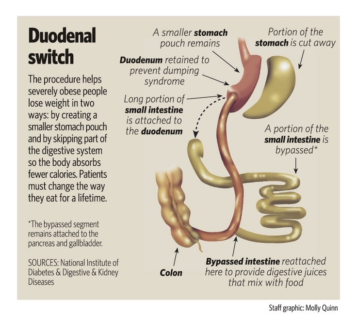 42 best Duodenal Switch Surgery images on Pinterest | Bariatric ...