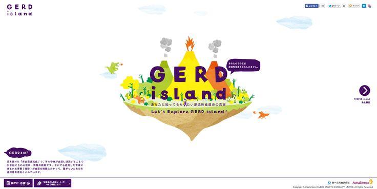 あなたに知ってもらいたい逆流性食道炎の真実 GERD island|胸やけ・呑酸.jp