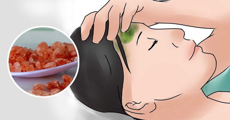 A dor de cabeça da enxaqueca é causada por uma deficiência de sódio orgânico,presente em sal de boa qualidade,como o sal do Himalaia.O sal comum é um veneno muito prejudicial à saúde,o sal do Himalaia é um sal de verdade,um sal integral e fornece mais de 60 minerais e elementos naturais encontrados no corpo humano.O sal do Himalaia fortalece o sistema imunológico,aumenta os níveis de energia, equilibra os níveis de serotonina no sangue, restaura o equilíbrio alcalino e os eletrólitos do…