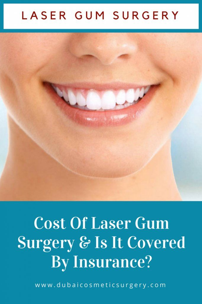 Cost Of Laser Gum Surgery & Is It Covered By Insurance