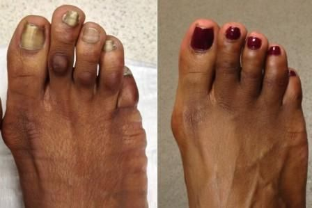 Natural Corn Removal For African American Feet