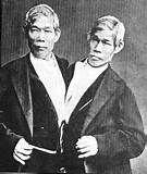 deze siamese tweeling is beroemd en hebben samen op de 20 kinderen, waarvan er geen deze aandoening hebben