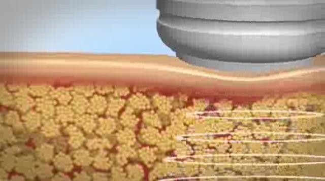 3D Video - ¿Como funciona la Cavitacion? http://www.cavita.net