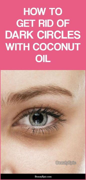 how to get rid of dark circles with coconut oil | Dark ...