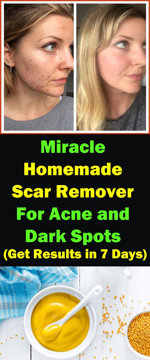 Miracle Homemade Scar Remover For Acne and Dark Spots – Get Results in 7 Days