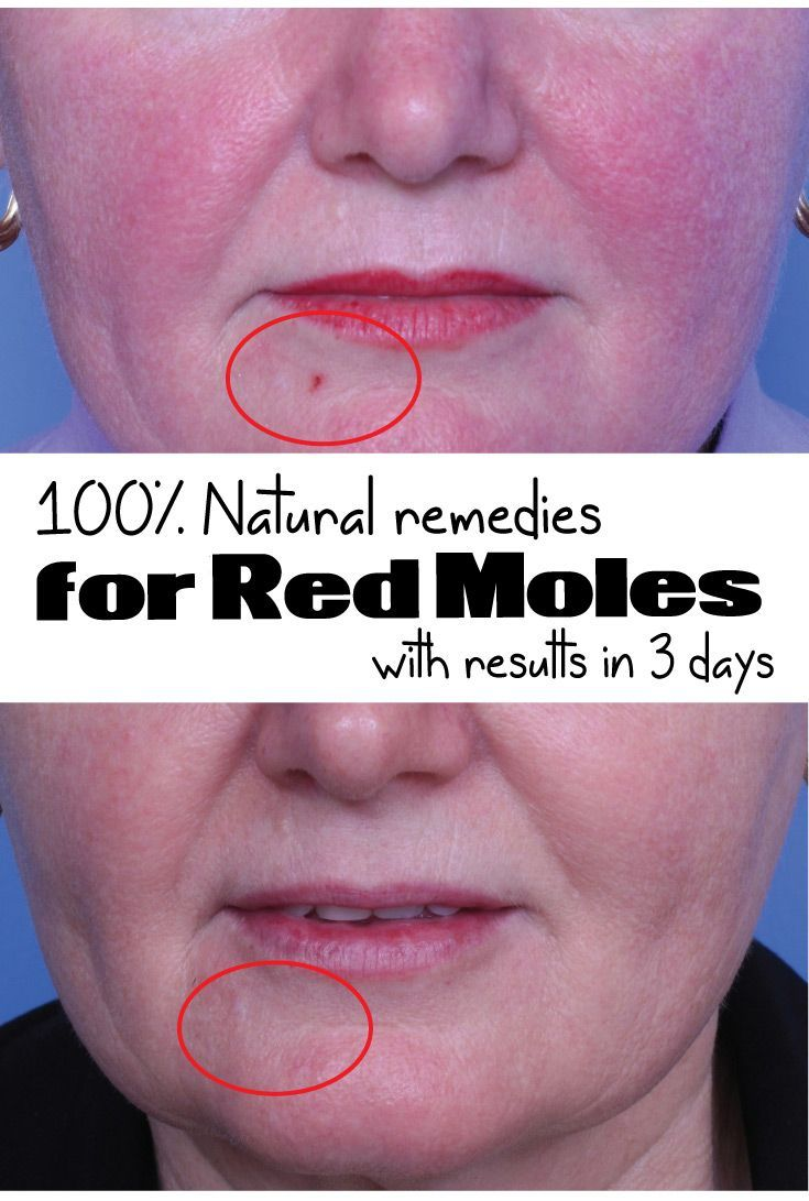 100%Natural Remedies for Red Moles with results in 3 days - Wiki Remedies