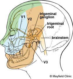 Was fibromylgia facial nerve