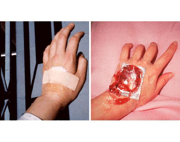 "Angela Ellsworth col. Tina Takemoto ""Her/She Senses: imag(in)ed malady"" (1993) Tema: Cáncer, linfoma"