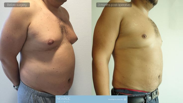 Vaser Liposuction and Gynecomastia Surgery performed by DR. Ozge Ergun  #PlasticSurgery #gynecomastia #vaserliposuction #liposuction #Aesthetics #beauty #estética #cirugíaplástica‬ #estetica #chirurgiaplastica #Ästhetische #plastischeChirurgie #chirurgieplastique #Schönheit #鼻形成術 #整形手术 #جراحةالتجميل #隆鼻 #코성형술 #성형수술 #næsekorrektion #rhinoplastie #ринопластика #пластичнаоперација #realself