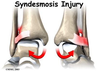 High Ankles Sprains - A Patient's Guide to Ankle Syndesmosis Injuries.