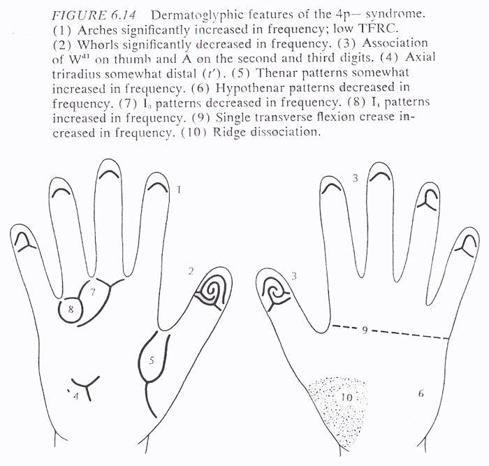 Hand chart for Wolf-Hirschhorn syndrome, source: B. Schaumann & M. Alter, 1976.