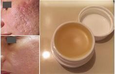 Elimine cicatrizes na pele em 2 semanas com este creme caseiro | Cura pela Natureza