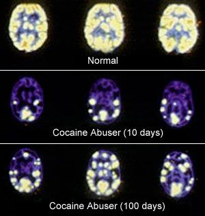 drug brain damage recovery