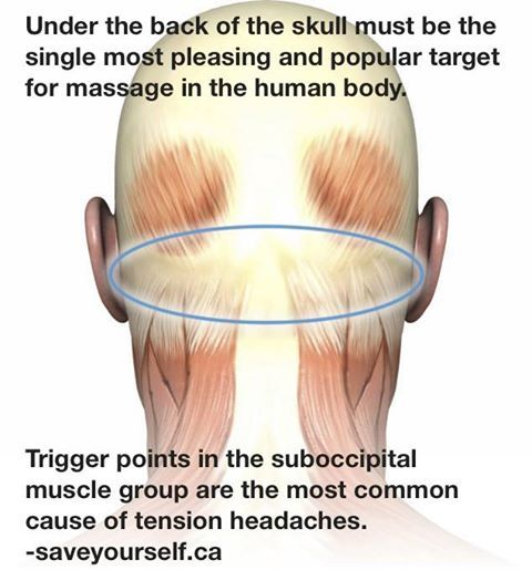 Massage for headaches~right below the occipital.  Family Care Chiropractic 972.782.7707 972.771.9448 www.chiropracticrockwall.com