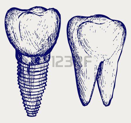 Implante de dientes y molares. Doodle estilo photo