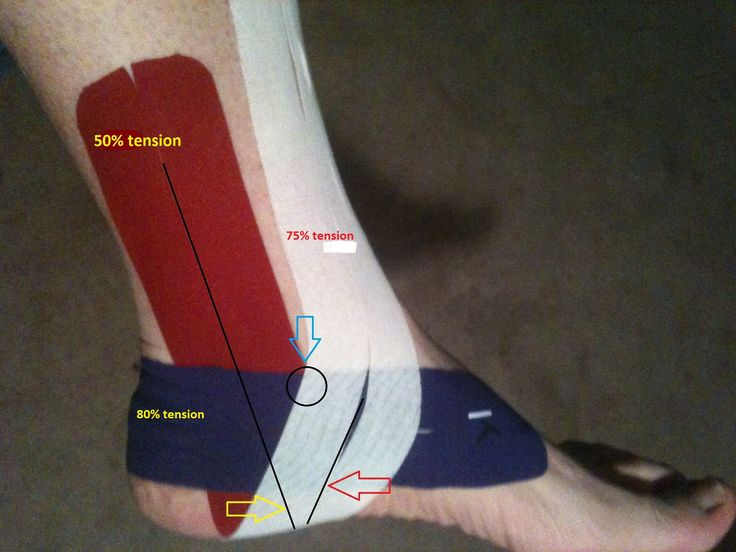 KT Tape ankle placement.