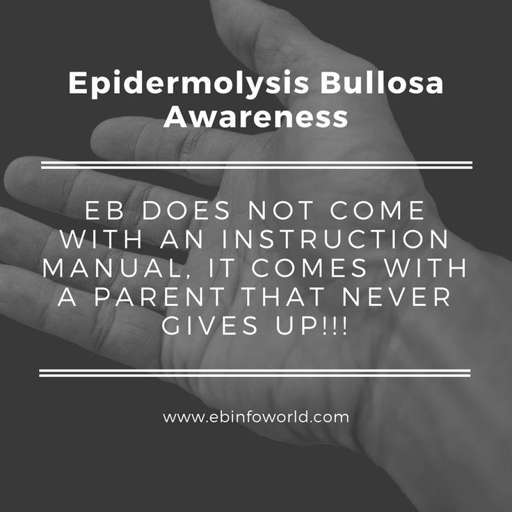 #EBawareness #EpidermolysisBullosa ebinfoworld.com