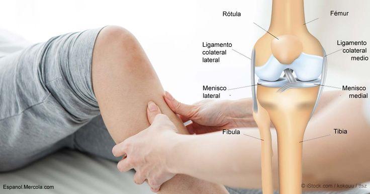 Las investigaciones sugieren que la terapia física para aliviar el dolor de rodilla puede ser igual de efectiva que la cirugía, pero a un costo y un riesgo significativamente menor.