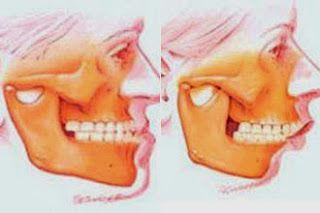 KR Odontologia e Radiologia Odontológica: Cirurgia Ortognática