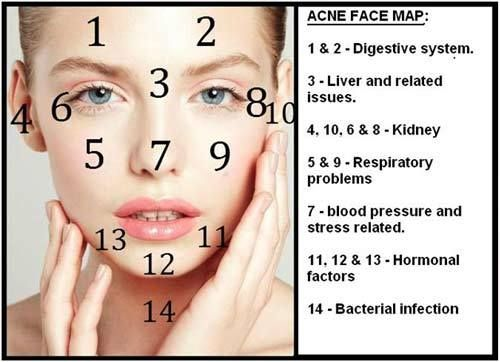 treatment for pimples on forehead
