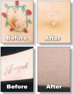 new tattoo removal natural tattoo removal tattoo 6p3qdhcw laser tattoo ...