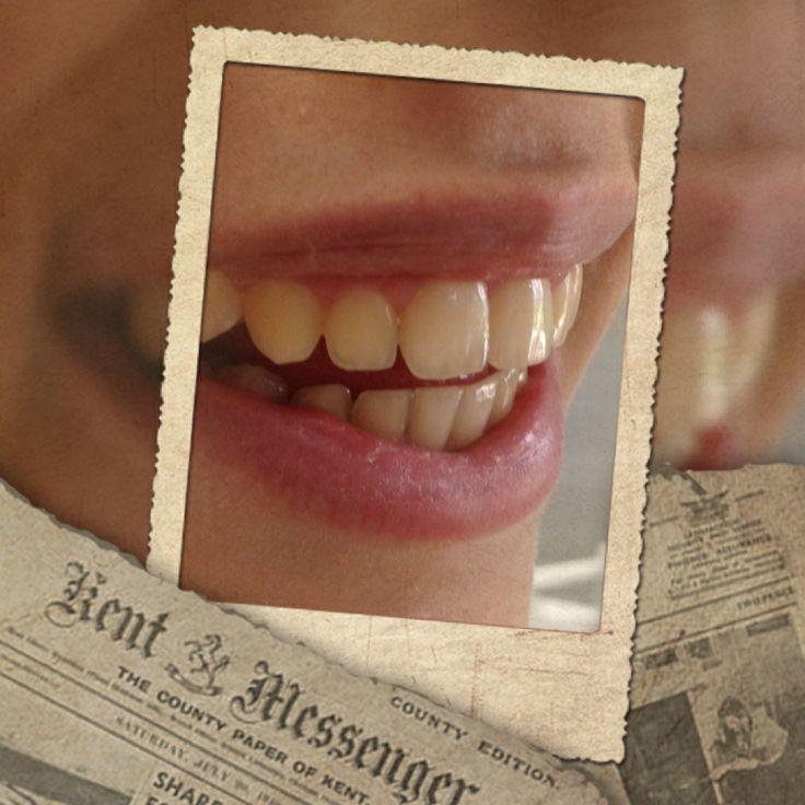 Una sonrisa saludable y feliz en su primer día sin brackets #ortodoncia #brackets #braces #orthodontics