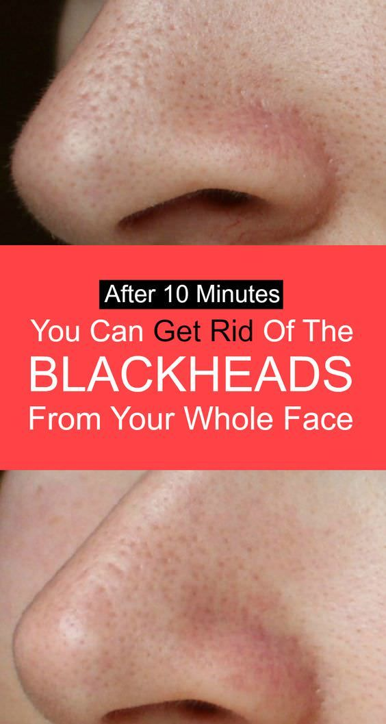 Say goodbye to blackheads appearing on your face and get instant result, apply this mixture for 10 minutes and see what happens!