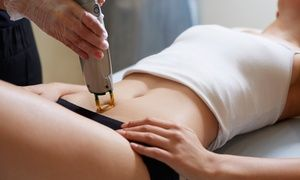 Groupon - Laser Hair Removal at LaserTouch Aesthetics (Up to 89% Off). Six Options Available.  in Multiple Locations. Groupon deal price: $82