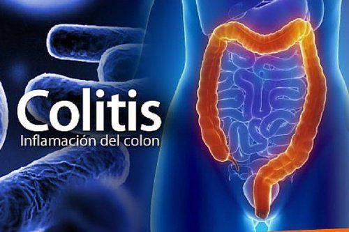 6 tratamientos naturales para combatir la colitis - Mejor con Salud