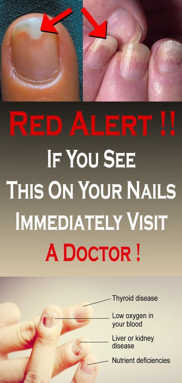 If You See This On Your Nails Visit Doctor In 2020 You Nailed It Diabetes Education Healthy Advice