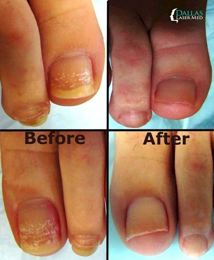 10 best Dallas Laser Med Nail Fungus images on Pinterest | Dallas ...