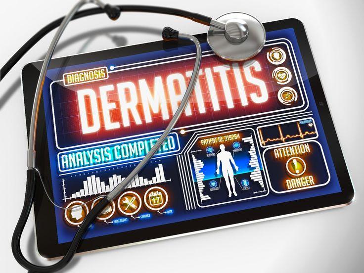 Lo que debes conocer de la dermatitis, una enfermedad multifactorial - http://plenilunia.com/avances-medicos-2/lo-que-debes-conocer-de-la-dermatitis-una-enfermedad-multifactorial/34478/