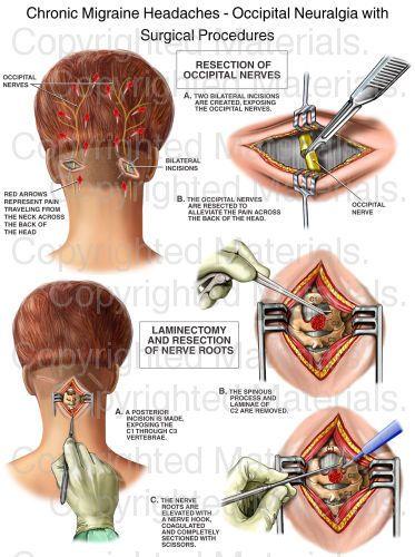 Chronic Migraine Headaches - Occipital Neuralgia with Surgical Procedures