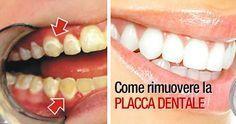 come rimuovere placca dentale