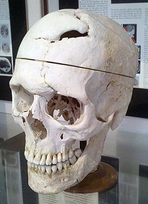 The skull of Phineas Gage on display at the Warren Anatomical Museum at Harvard Medical School.-Phineas Gage neuroscience case: True story of famous frontal lobe patient is better than textbook accounts.