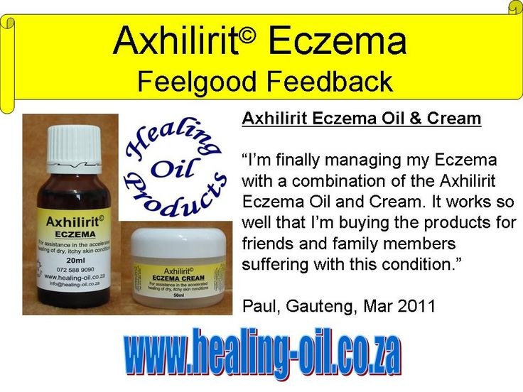 Managing the whole family's eczema with Axhilirit Eczema Oil and Cream. For more info visit www.healing-oil.co.za